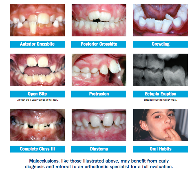 common orthodontic problems in kids